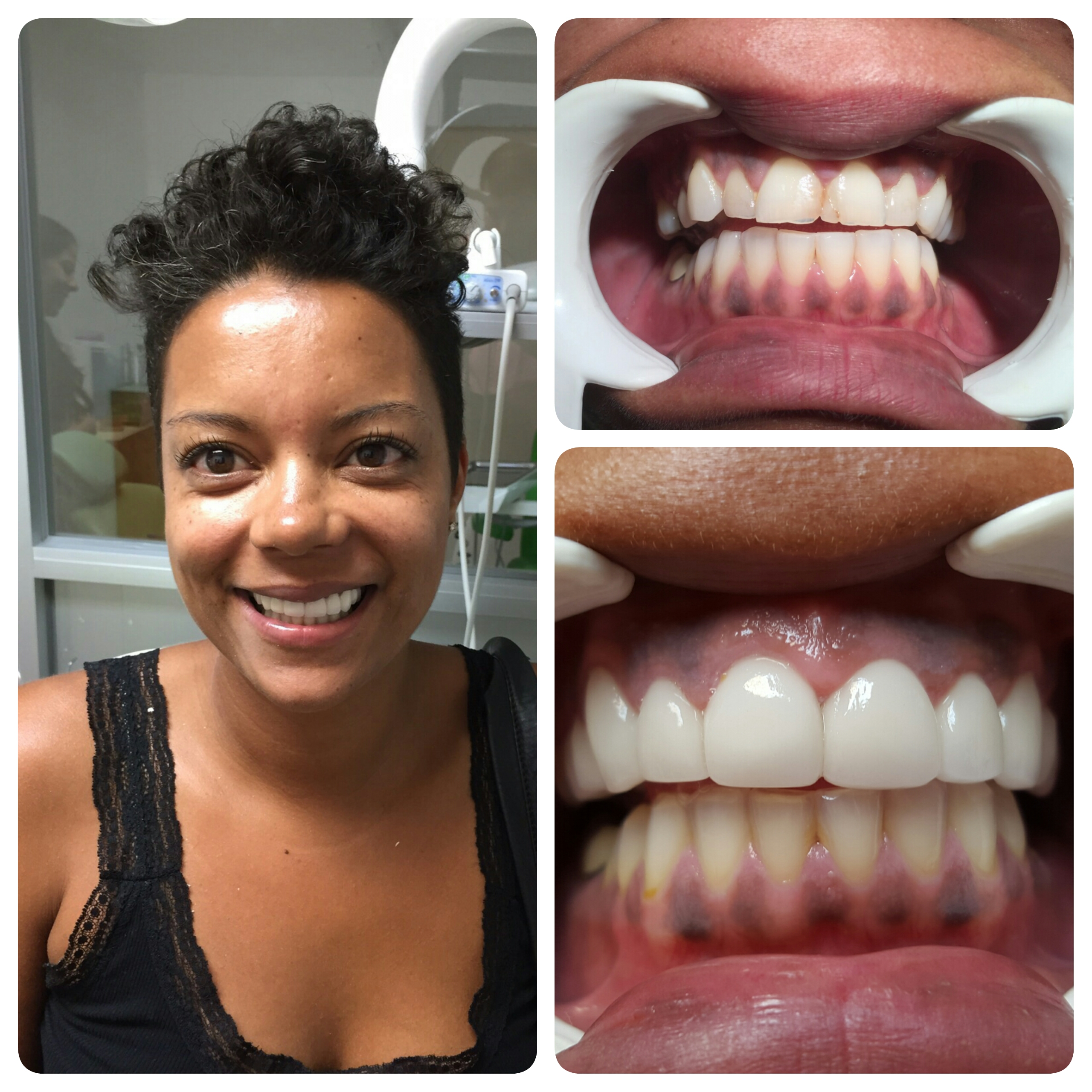 Emax porcelain crowns