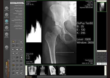 x ray.jpg