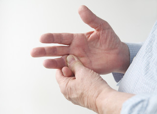 What are Hand Contractures? (Dupuytren's Contracture)