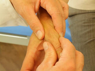 Arthritis of the Base of the Thumb