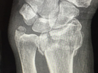 Distal Radius Fracture (Wrist Fractures)