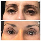 plasma pen eye before and after.jpg