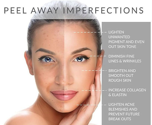 Chemical-Peels-1 (1).jpg