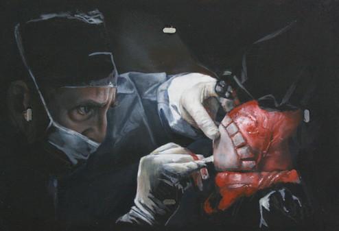 Surgical Sketch No.3