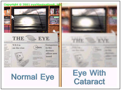 vision with cataract, cataract houma