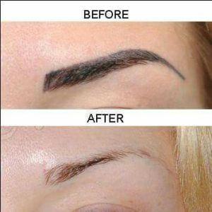Permanent Makeup Removal Columbia, SC