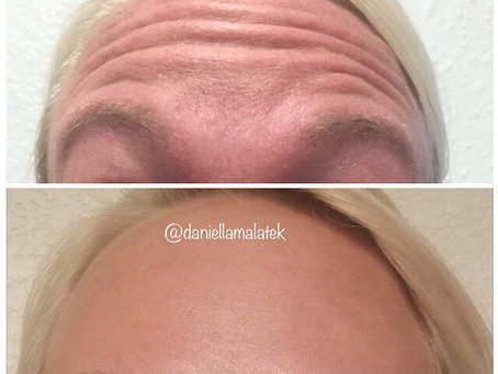 The Botox Side Effects