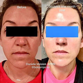 sculptra face filler columbia, sc