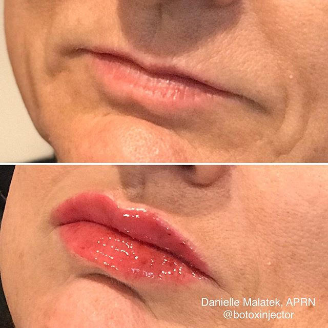 Lips are great but making my patients fe
