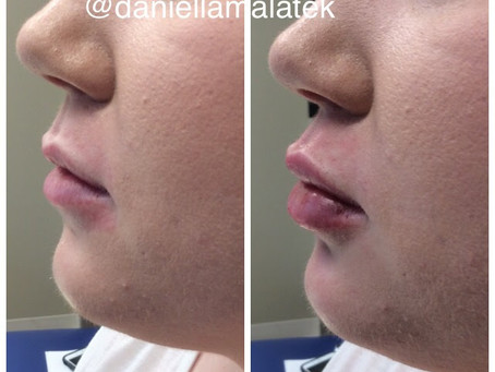 Face Fillers and Dermal Fillers in Columbia, South Carolina