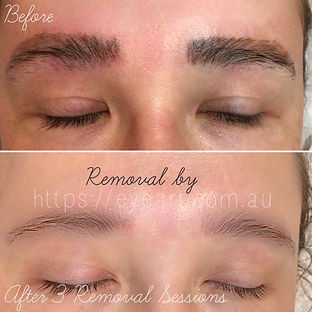 microblading removal Columbia, SC