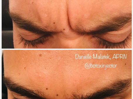 Botox and Juvederm and Restylane