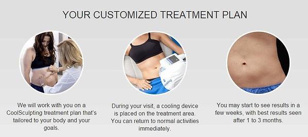 coolsculpt-treatment-plan.jpg
