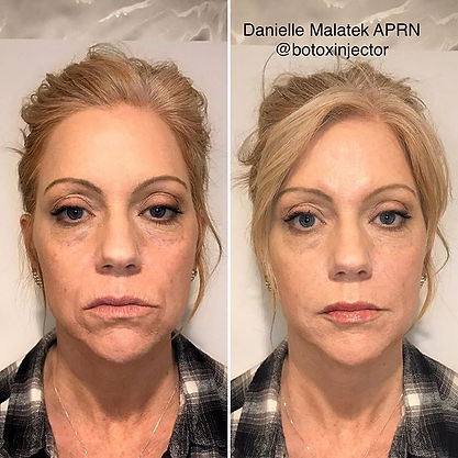 I love her natural looking results! Was