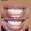 Thumbnail: Teeth Whitening Course