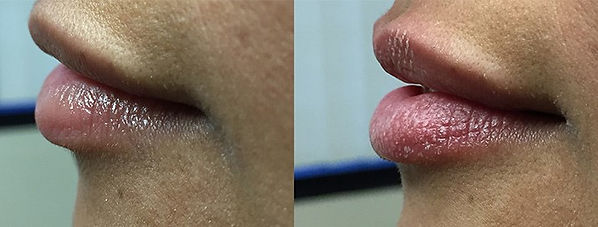 lip lase before and after.jpg