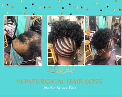 Non Surgical Hair Loss Solutions