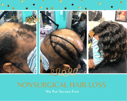 Non Surgical Hair Loss Solutions 1