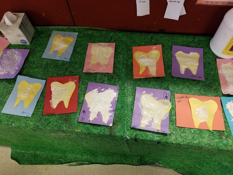 Tooth art projects