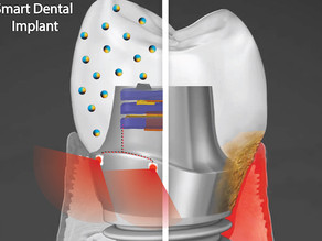 Smart dental implants for that white and 'brightening' smile