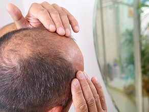 New and faster way to regrow hair due to male-pattern baldness