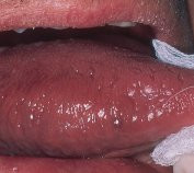 10 Facts about Oral Cancer You Might Not Know!