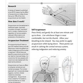 Acupuncture & Sleep