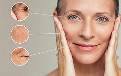 bigstock-Close-ups-of-wrinkles-and-skin-