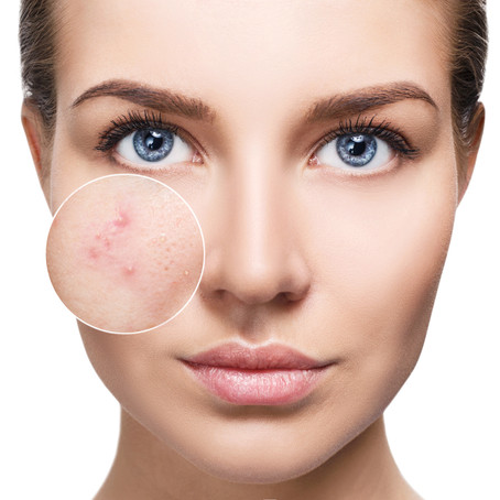What's all the buzz about Collagen?