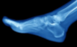 x-ray of foot.jpg