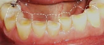 Are your teeth getting shorter?