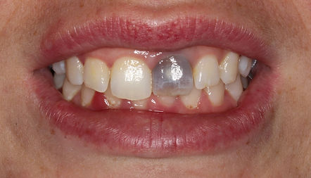 dark front tooth