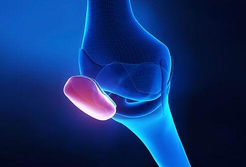 sports-injuries-s14-runners-knee.jpg