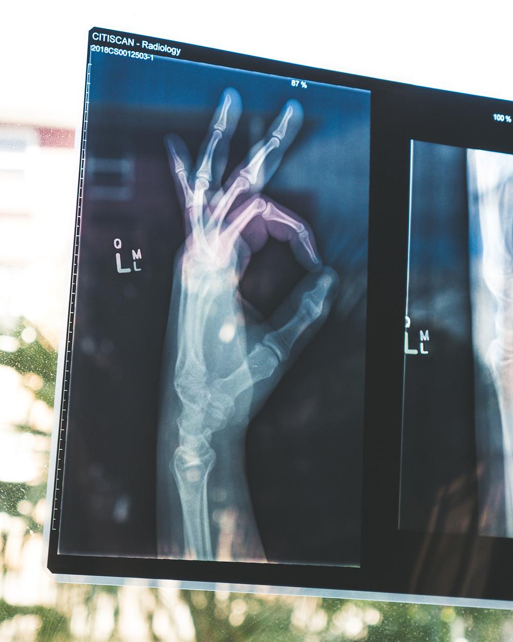 Figure 3.1: Hand X-ray