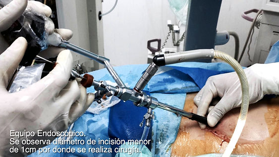 Cirugia percutanea renal