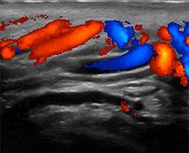 Ultrasonido con varicocele