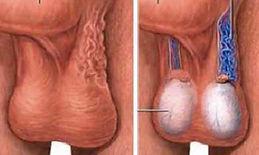 Varicocele, varices testiculares