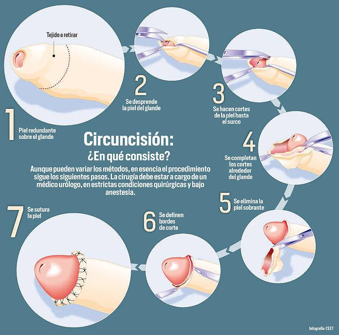 Circuncision tecnica