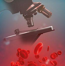 Sangre en Orina