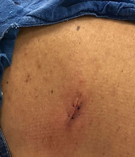 Herida posterior a cirugia