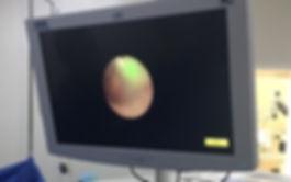 Ureteroscopia Dr. Enrique Pulido