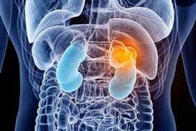 Deteccion de cancer de prostata
