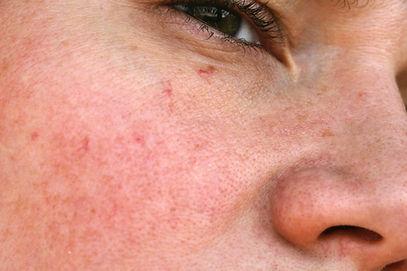 Rosazea, Hautrötungen und Couperose