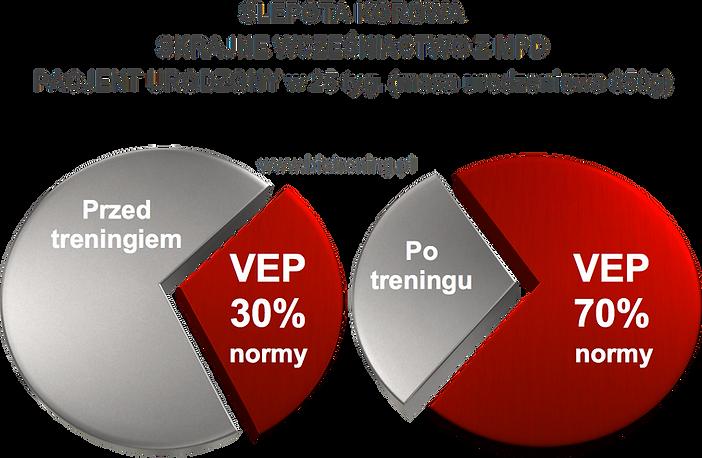 Ślepota korowa skrajne wcześniactwo z MPD terapia