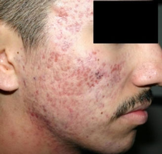 ACNE SCAR REMOVAL AFTER.jpg