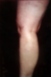varicose treatment san antonio after.jpg