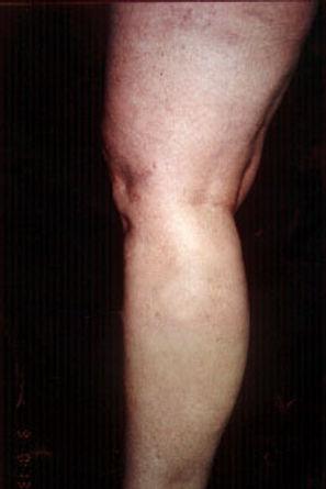 varicose treatment san antonio after.jpg