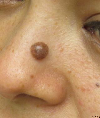 mole removal nose san antonio.png