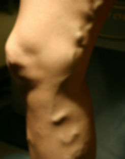 Vein_Before.jpg