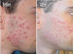 ACNE EXTRACTIONS BEFORE AND AFTER FACIAL